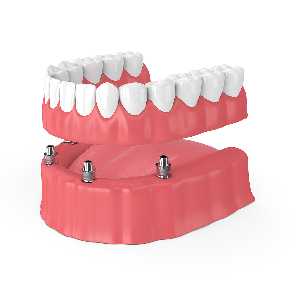 3d render of removable full implant denture